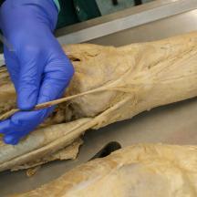 3.11b Continuation of the gracilis tendon into the compression fascia