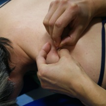 Needling of the upper trapezius
