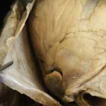Pericardium held away from the heart