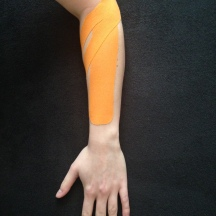 Taping of the forearm