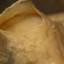 Sub acromial bursa